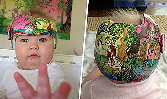 Babies with a flattened head. Plagiocephaly in babies