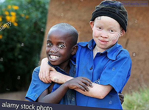 Albino children. Albinism in childhood