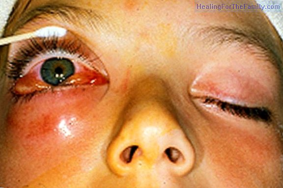 Cellulitis in children. Causes and treatment