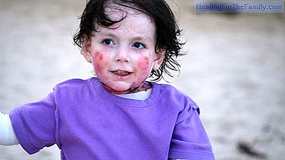 Purple disease in children
