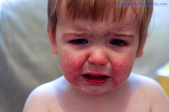 Disease of the slap or infectious erythema in babies and children