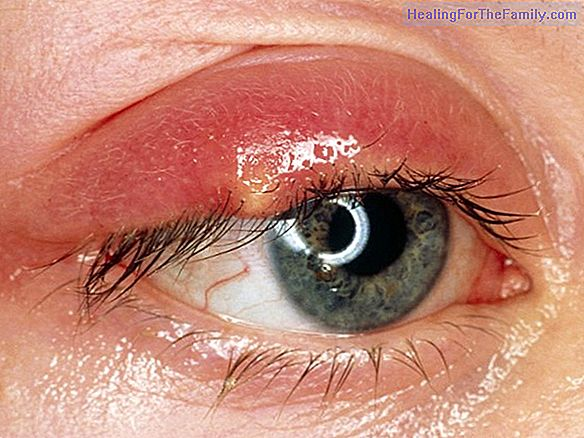 Stye in children. Causes and symptoms