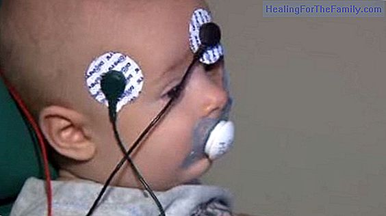 Tests to detect vision problems in babies