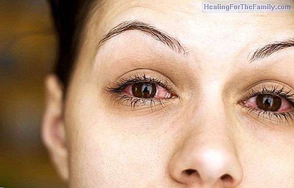 What is dry eye and how to treat it in children