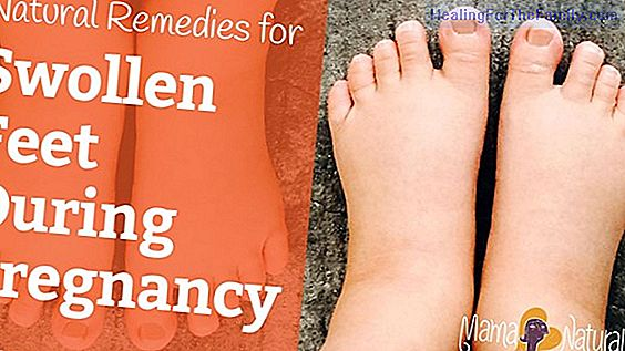 How to treat edema in pregnancy