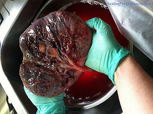 The placenta and its problems during pregnancy