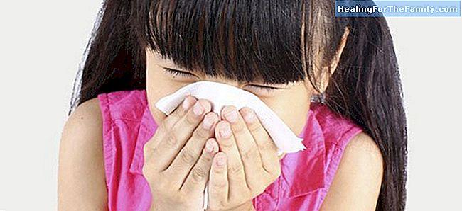 turvonnut limakalvo nenässä