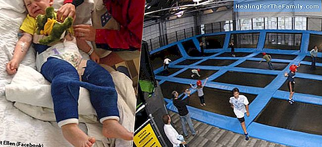 The risks of trampolines for children